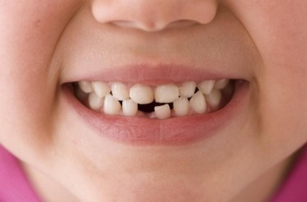 cade dentino